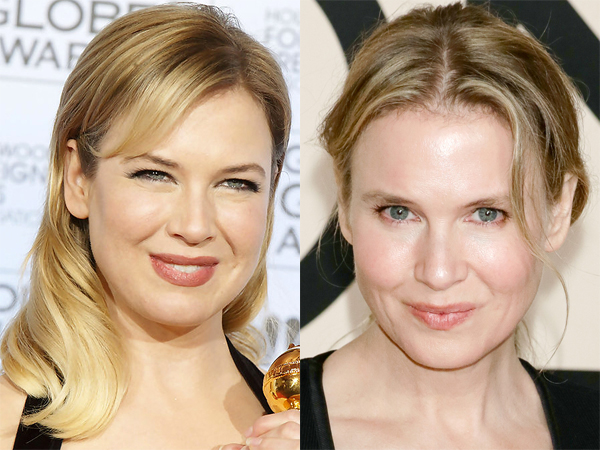 Renee-Zellweger-before-and-after-2